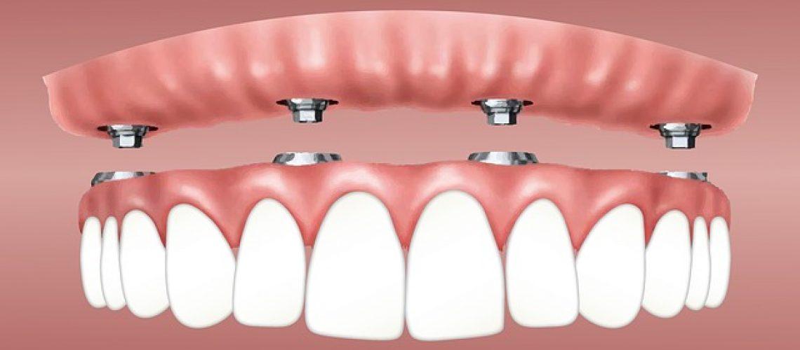 הלבנת שיניים- לכמה זמן זה מחזיק?